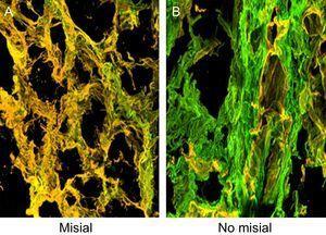 Tejido endomiocárdico procedente del paciente1, que sufría EA grave con FEc y síntomas de IC. Los cortes se tiñeron con anticuerpos monoclonales específicos dirigidos contra los colágenos de tipoI yIII, y las fibras se identificaron en la microscopia confocal en verde y amarillo respectivamente. A:la región misial de la red de colágeno. B:la región no misial de la red de colágeno. Aumentos, ×60. EA: estenosis de la válvula aórtica; FEc:fracción de eyección conservada; IC:insuficiencia cardiaca.
