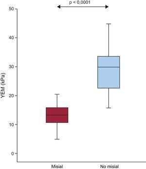 Distribución del YEM en las regiones misial y no misial de los pacientes con EA grave, FEc y síntomas de IC (n=20). Los recuadros indican los valores de los centiles 5 y 95 (líneas verticales), 25 y 75 (recuadros) y 50 (recta horizontal). EA: estenosis de la válvula aórtica; FEc:fracción de eyección conservada; FVC:fracción de volumen de colágeno; IC: insuficiencia cardiaca; YEM: módulo elástico de Young.