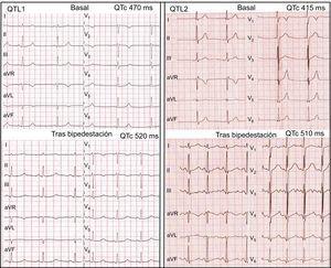 Izquierda: test de bipedestación de un paciente con QTL1; en la situación basal, la FC es de 50lpm; el intervalo QT, 515ms y el intervalo QTc, 470ms; tras la bipedestación, la FC es de 75lpm; el intervalo QT, 465ms y el intervalo QTc, 520ms; se observa un patrón de onda T de aspecto normal e inicio tardío después de la bipedestación. Derecha: test de bipedestación de un paciente con QTL2; en la situación basal, la FC es de 60lpm; el intervalo QT, 415ms y el intervalo QTc, 415ms, y se observan ondas T bífidas sutiles en las derivaciones V2-V3; después de la bipedestación, la FC es de 106lpm; el intervalo QT, 384ms y el intervalo QTc, 510ms, y hay ondas T bífidas obvias en todas las derivaciones. FC:frecuencia cardiaca; QTc:intervalo QT corregido; QTL1:síndrome de QT largo tipo1; QTL2:síndrome de QT largo tipo2.
