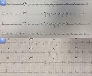 A: electrocardiograma al ingreso. B:electrocardiograma a las 72h del cuadro agudo.
