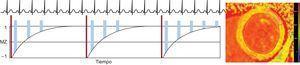 Estrategia de adquisición para el mapeo de T1 utilizando una secuencia MOLLI. Después de un pulso de inversión (barras finas), las lecturas de la imagen (barras anchas) se realizan en la diástole durante 3latidos cardiacos, seguido de un periodo de reposo de 3latidos. Después se realiza otra inversión con lecturas con una compensación diferente durante otros 3latidos cardiacos. Por último, se adquieren las lecturas durante 5latidos después de un periodo de recuperación de 3latidos. Este esquema de MOLLI se denomina, pues, 3(3)3(3)5. Mediante el ajuste de la intensidad de señal de cada píxel a la curva de recuperación de T1, puede generarse un mapa de T1 (derecha). MOLLI:secuencia de inversión-recuperación look-locker modificada.