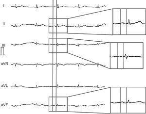 Ejemplo de electrocardiograma de un participante con bloqueos interauriculares avanzados: onda P bifásica en las derivaciones II, III y aVF.