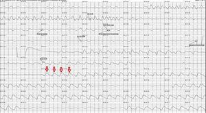 Ondas en los trazados creadas por el masaje cardiaco. Las flechas muestran las ondas registradas en el trazado que se deben a la realización de maniobras de RCP. Se aprecian 2ciclos de 30compresiones y 1pausa, presumiblemente para las ventilaciones siguiendo el estándar 30:2. RCP:reanimación cardiopulmonar.