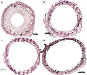 Resultados histológicos al mes: A: stent convencional. B: stent farmacoactivo BD1. C: stent farmacoactivo comercial, Orsiro. D: stent farmacoactivo comercial, Biomime.