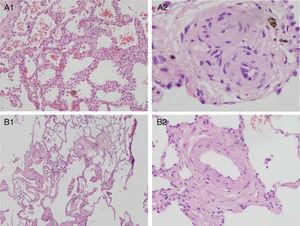 Hallazgos histopatológicos de pacientes homocigotos afectados. Tinción hematoxilina-eosina. A: estudio histológico pulmonar de paciente intolerante a vasodilatadores (paciente 1.I). A1: aumento 4×. Se muestra un parénquima pulmonar con engrosamiento septal y hemangiomatosis capilar evidente. Macrófagos intraalveolares cargados de hemosiderina. A2: aumento 40×. Engrosamiento fibrótico venular. B: estudio histológico pulmonar de paciente tolerante a vasodilatadores (paciente 3.I). B1: aumento 4×. Engrosamiento septal menos marcado y difuso, hemangiomatosis capilar y macrófagos intraalveolares cargados de hemosiderina. Engrosamiento de pared de estructuras vasculares. B2: aumento 20×. Estructura vascular de pared engrosada. El septo alveolar en la zona periférica de la imagen presenta un grosor normal.