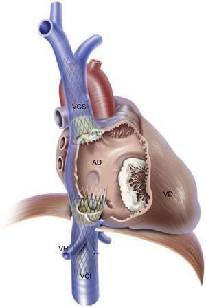 Implante heterotópico de válvula en la vena cava. Doble implante valvular con un dispositivo TricValve autoexpandible en la vena cava inferior y otro en la superior. AD: aurícula derecha; VCI: vena cava inferior; VCS: vena cava superior; VD: ventrículo derecho; VH: venas hepáticas. Reproducido con permiso de Lauten et al.32.
