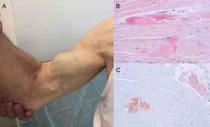 Signos y síntomas en amiloidosis por transtiretina. A: rotura atraumática del tendón bíceps derecho («signo de Popeye»). B y C: tinción con hematoxilina-eosina (B) y con rojo congo (C), ambas ×200, de muestra de ligamento del carpo que muestra haces de colágeno denso con presencia de material acelular. Cortesía de la Dra. Clara Salas Antón.