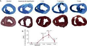 Dinámica de la OMV en un modelo porcino de IAM reperfundido. A: en los paneles superiores se muestran imágenes macroscópicas representativas de cortes de corazón procedentes de los grupos de control y los 4 grupos de IAM (sin reperfusión, 1min, 1 semana y 1 mes después de la reperfusión) con tinción de tioflavina-S; los asteriscos indican el área de OMV en los grupos con reperfusión; en los paneles inferiores se muestran imágenes ilustrativas de cortes del corazón teñidos con solución de cloruro de 2,3,5-trifeniltetrazolio. B: el grado de OMV se cuantifica mediante el porcentaje de área perfundida por la arteria coronaria descendente anterior izquierda en los 5 grupos experimentales; la OMV apareció en las fases iniciales tras el IAM, alcanzó su máximo 1 semana después de la reperfusión y se había resuelto casi completamente 1 mes después de la reperfusión. Los datos (media ± desviación estándar; n ≥ 5) se analizaron con un ANOVA de una vía seguido de una prueba de Bonferroni. Un evaluador que no conocía el grupo experimental del que procedían las imágenes realizó el análisis. DAI: descendente anterior izquierda; IAM: infarto agudo de miocardio; OMV: obstrucción microvascular. ap < 0,01 frente al control. bp < 0,01 frente al grupo de 1 semana después de la reperfusión.