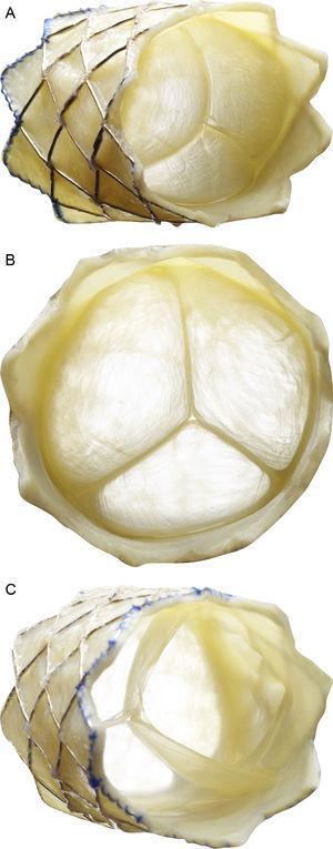 Descripción de la válvula pulmonar percutánea Melody (Medtronic Inc.; Minneapolis, Minnesota, Estados Unidos). Stent no recubierto de platino-iridio de 34mm (CP stent, NuMED Inc.; Hopkinton, New York, Estados Unidos) con un segmento valvular de vena yugular bovina cosido a mano. A: vista frontolateral. B: vista frontal. C: vista desde el extremo distal. El dispositivo se repliega y se fija a un catéter balón en balón y se libera a través de una vaina larga modificada de 22 Fr (Ensemble Delivery System, Medtronic Inc.), disponible en diámetros del balón externo de 18, 20 y 22mm. La técnica de balón en balón permite la liberación de la válvula en 2 pasos y reposicionarla una vez inflado el balón de menor tamaño.