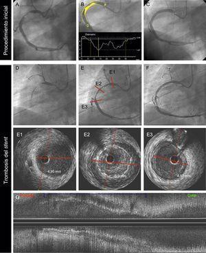 Trombosis muy tardía de un SM causada por un probable remodelado vascular positivo, en un varón de 69 años con infarto agudo de miocardio sin elevación del segmento ST. La angiografía basal (A, B y C) mostró una lesión trombótica en la arteria coronaria derecha proximal (A). B: la angiografía coronaria cuantitativa mostró un diámetro de referencia del vaso de 4,84 mm; P y D son, respectivamente, los diámetros de referencia proximal y distal del vaso. C: se trató al paciente con un SM de 4,5 × 38 mm. D: a los 18 meses, el paciente presentó una TS muy tardía; la angiografía mostró una oclusión trombótica de la arteria. E: se restableció el flujo tras aspiración del trombo. La imagen de IVUS (E1, E2, E3, G) mostró unos diámetros luminal de referencia proximal y distal de 4,9 mm (E1, E3); el segmento tratado con el stent mostró un probable remodelado positivo del vaso (diámetro luminal de 6,9mm) con una gran malaposición (E2 y G: vistas axial y longitudinal respectivamente). Se trató al paciente con un balón no distensible de 6,0 × 15 mm. IVUS: ecografía intravascular; SM: stent metálico; TS: trombosis del stent.
