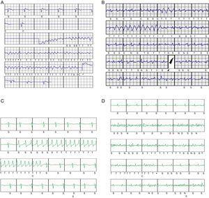 A: episodio de inducción de fibrilación ventricular tras el implante en un paciente, con conversión eficaz a ritmo sinusal con un choque del desfibrilador subcutáneo de 65J. B: choques inapropiados periimplante debido a fibrilación auricular rápida con complejos anchos intermitentes; programadas 2 zonas, condicional 180 lpm, choques a 250 lpm. C: episodio de taquicardia ventricular monomórfica no sostenida que determina el inicio de la carga del dispositivo; programadas 2 zonas, condicional 200 lpm, choques a 250 lpm. D: episodio clasificado como taquicardia ventricular no sostenida debido a sobresensado de señales no fisiológicas generadas por la movilización de la extremidad superior izquierda de una paciente; programadas 2 zonas, condicional 200 lpm, choques a 250 lpm.
