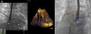 Ejemplo de fusión de imagen con ecocardiografía (A) y tomografía computarizada (B) durante el cierre percutáneo de una comunicación interventricular posinfarto. Nótese la vaina a través del defecto.
