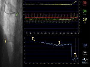 Ejemplo de medición de flujo coronario absoluto. A través de un catéter guía, se cruza una guía intracoronaria con doble sensor de presión y temperatura hasta el segmento distal de la arteria descendente anterior (flecha amarilla). Enhebrado sobre esa guía, se avanza el microcatéter Rayflow hasta el segmento proximal de la arteria (flecha verde). Tras conectar el extremo proximal del microcatéter a una bomba de infusión, se inicia la perfusión intracoronaria de suero salino a un flujo conocido y a temperatura ambiente. En la consola se puede observar en tiempo real la temperatura basal (Tb) y el descenso de la temperatura tras el inicio de la infusión (T). Tras un descenso paulatino, se produce un descenso estable de la temperatura intracoronaria; en este momento, se retira el sensor de temperatura hasta introducirlo en el microcatéter para conocer la temperatura de infusión (Ti). De este modo se puede cuantificar el flujo coronario máximo para esa arteria mediante la fórmula Qb=1,08Ti/TQi, donde Qi es el flujo de infusión de salino programado. Durante el registro, son detectadas simultáneamente la señal de presión aórtica (línea roja) y de la arteria coronaria distal (línea verde) lo que permite estimar simultáneamente la reserva fraccional de flujo (línea amarilla) y la resistencia microvascular mínima correspondientes al territorio interrogado mediante la fórmula: R=Pd/Qb, donde Pd es la presión intracoronaria distal y Qb, el flujo coronario absoluto. Esta figura se muestra a todo color solo en la versión electrónica del artículo.