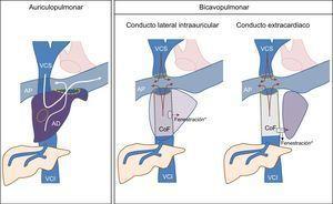Variantes de la cirugía de Fontan. AD: aurícula derecha; AP:arteria pulmonar; CoF:conducto de Fontan; VCI:vena cava inferior; VCS:vena cava superior. * La realización de una fenestración que comunique el conducto de Fontan y la aurícula derecha es una variante empleada solo en algunos pacientes. Esta figura se muestra a todo color solo en la versión electrónica del artículo.