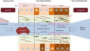 Fisiopatología de la enfermedad hepática relacionada con la cirugía de Fontan. La hipertensión venosa sistémica secundaria a la cirugía de Fontan se traduce en una disminución del retorno venoso, que aumenta la presión y dilata de manera retrógrada el sinusoide. Se producen fenómenos de hiperfiltración hacia el espacio de Disse, y el estrés mecánico induce un cambio fenotípico de la célula endotelial sinusoidal. La liberación de ciertas moléculas por esta activa de manera autocrina la célula hepática estrellada, que facilita los fenómenos de fibrogénesis. La hipoxia y la fibrosis perisinusoidal a la larga producen necrosis parenquimatosa hepatocitaria, más evidente en la zona3 (cercana a la vena centrolobulillar). CE:célula endotelial sinusoidal; CHE:célula hepática estrellada. Esta figura se muestra a todo color solo en la versión electrónica del artículo.