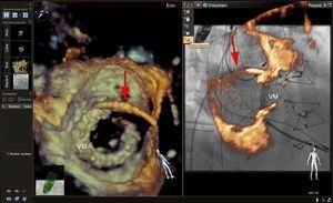 Imagen de fusión ecocardiografía-fluoroscopia para el cierre de una fuga valvular mitral. En el panel de la izquierda se muestra una imagen de ecocardiografía tridimensional (3D) de una válvula mitral bioprotésica desde la perspectiva de la aurícula izquierda. Se observa un catéter guía (flecha roja) que atraviesa el tabique auricular y que se ha canulado un defecto paravalvular anterolateral. En el panel de la derecha se muestra una proyección fluoroscópica oblicua anterior derecha de la válvula mitral bioprotésica con imágenes de ecocardiografía 3D superpuestas (grosor de corte parcial). La superposición de la información ecocardiográfica con la información fluoroscópica parece exacta, pero el artefacto de blooming de la ecocardiografía 3D, el ruido ecocardiográfico y la información adicional de tejidos blandos procedente de la serie de datos de ecocardiografía 3D oscurecen la proyección fluoroscópica del catéter guía y la válvula mitral bioprotésica. En nuestra experiencia, con un abordaje anterógrado de estos defectos, la ecocardiografía 3D combinada con la fluoroscopia sin fusión suele ser suficiente para guiar la intervención. La adición de una marca de referencia en el lugar del defecto paravalvular puede ser útil, en especial en casos de que el defecto sea pequeño y no se observe bien en la ecocardiografía 3D. VM: válvula mitral bioprotésica. Esta figura se muestra a todo color solo en la versión electrónica del artículo.