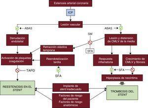 Fisiopatología de la reestenosis en el stent y de la trombosis del stent. La dilatación del vaso afectado mediante un ABAS causa una lesión mecánica en la pared vascular y las consecuentes denudación endotelial, lesión mecánica de la pared vascular con respuesta inflamatoria y fibrosis/hiperplasia de neoíntima, que son los principales mecanismos de la reestenosis en el stent y la trombosis del stent aguda o tardía. Los SM y los SFA pueden prevenir algunos de estos procesos adversos, pero son también un estímulo para la inflamación y la fibrosis. La reestenosis en el stent y la trombosis del stent pueden estar determinadas también por factores de riesgo del paciente (es decir, diabetes, tabaquismo), características anatómicas del vaso tratado (como las lesiones con gran calcificación, el diámetro del vaso, la presencia de ramas colaterales) o un implante de stent inadecuado (grosor de los struts, mala aposición del stent, diámetro de stent inadecuado). ABAS:angioplastia con balón antiguo simple; CMLV:células de músculo liso vascular; ICP:intervención coronaria percutánea; SFA:stent farmacoactivo; SM:stent metálico; TAPD:tratamiento antiagregante plaquetario doble.