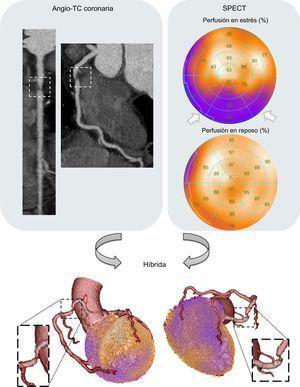 Ejemplo característico de una exploración híbrida mediante angiografía por tomografía computarizada (angio-TC) coronaria e imagen de perfusión miocárdica con tomografía computarizada por emisión monofotónica (IPM-SPECT). Una placa muy estenótica situada en la arteria coronaria proximal derecha (recuadro) que se observa en la angio-TC coronaria se corresponde con mucha exactitud con un defecto de perfusión miocárdica en la pared inferior (flechas blancas) determinada por la IPM-SPECT. Esta figura se muestra a todo color solo en la versión electrónica del artículo.