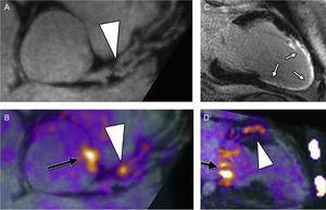 Imagen híbrida de PET-RM. Imágenes reformateadas de una placa culpable en la arteria coronaria descendente anterior izquierda de un paciente a los 6meses de haber tenido un infarto de miocardio: se observa una placa (punta de flecha) que causa una estenosis luminal proximal en la angiografía por resonancia magnética (RM) (A). Se observa un aumento de la captación de 18F-fluoruro sódico (NaF) exactamente en ese lugar en la imagen de fusión con la tomografía por emisión de positrones (PET)-RM (B, punta de flecha). Se confirma en las imágenes de realce tardío de gadolinio un infarto de miocardio extenso, casi transmural, que corresponde al territorio de perfusión de esta lesión (C, flechas blancas). Se observa de nuevo una gran captación de 18F-NaF en la lesión culpable en la arteria coronaria descendente anterior izquierda en proyección bicameral del ventrículo izquierdo (D, punta de flecha). Obsérvese también el aumento de la captación en la raíz de la aorta (B, flecha negra) y el anillo de la válvula mitral (D, flecha negra). Todas las imágenes se adquirieron durante una sola exploración de PET-RM. Reproducido con permiso de Robson et al.59. Esta figura se muestra a todo color solo en la versión electrónica del artículo.