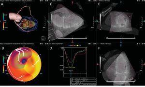 Imagen de fusión de ecocardiografía tridimensional (3D) y angiografía por tomografía computarizada (angio-TC) coronaria. A:imagen de la anatomía coronaria mediante angio-TC fusionada con la imagen del ventrículo izquierdo mediante seguimiento del movimiento de la pared basada en la ecocardiografía 3D. B:mapa polar del strain longitudinal (SL) basado en la anatomía coronaria registrada con la angio-TC coronaria. D:curvas de SL de cada uno de los territorios vasculares coronarios. C, E y H:planos de reconstrucción multiplanar de la angio-TC coronaria con superposición de ecocardiografía 3D. ACD:arteria coronaria derecha; Ant:anterior; CXI:arteria circunfleja izquierda; DAI:arteria descendente anterior izquierda; EC:eje corto; ELH:eje largo horizontal; ELV:eje largo vertical; FE:fracción de eyección; inf:inferior; lat:lateral; post: posterior; sept:septal; VTD:volumen telediastólico; VTS:volumen telesistólico. Reproducido con permiso de Knegt et al.68. Esta figura se muestra a todo color solo en la versión electrónica del artículo.