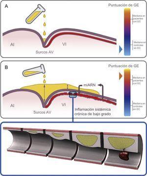 Hipótesis para la acumulación de GE dependiente de la región y su papel en el corazón. Los depósitos de grasa se inician en los surcos y luego se extienden a la superficie del VD y finalmente a la del VI. A: representación esquemática del depósito inicial de GE en los surcos AV de un individuo de control, con una puntuación de GE baja. B: en un estadio de depósito avanzado, la GE se acumula no solo en los surcos (con la máxima profundidad), sino también en el surco interventricular anterior y la superficie del VI en un paciente con EC y una puntuación de GE alta; la inflamación sistémica crónica de bajo grado induce una alteración del perfil de miARN en la GE que circunda las arterias coronarias, y ello fomenta la ateroesclerosis y la desestabilización de las placas. AI: aurícula izquierda; AV: auriculoventricular; EC: enfermedad coronaria; GE: grasa epicárdica; puntuación de GE: suma total de las mediciones del grosor de la GE en cada individuo; VD: ventrículo derecho; VI: ventrículo izquierdo.