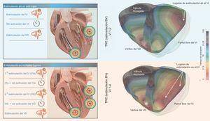 Representación in silico del efecto de una estimulación en un solo lugar o en múltiples lugares. Representación esquemática de la estimulación en múltiples lugares del ventrículo izquierdo (VI) en comparación con la estimulación en un solo lugar (paneles de la izquierda). En los paneles de la derecha se muestra una simulación tridimensional 3D específica de un paciente in silico en cuanto al patrón de activación del VI el ventrículo derecho (VD). En el panel superior izquierdo, se muestra la estimulación convencional del VI en un solo lugar en combinación con la estimulación ventricular del VD convencional, mientras que en el panel superior derecho se muestra el mapa de activación BV 3D resultante. En el panel inferior izquierdo, se muestra una estimulación de múltiples puntos en el VI, en la que el primer ritmo del VI (VIa) precede inmediatamente al segundo ritmo del VI (VIb), creando un patrón de activación diferente, que se muestra en el panel inferior derecho. La estimulación de múltiples puntos en el VI muestra una mejor sincronización eléctrica del VI, tal como se muestra en la simulación 3D. BV: biventricular; TRC: terapia de resincronización cardiaca. Esta figura se muestra a todo color solo en la versión electrónica del artículo.