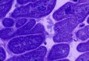 Biopsia miocárdica del ventrículo izquierdo. Paciente con miocardiopatía alcohólica crónica. Se observa marcada hipertrofia celular y nuclear, desestructuración del patrón sarcomérico de los miocardiocitos y presencia de fibrosis intersticial. Microscopia electrónica, corte semifino, ×600 aumentos, tinción con azul de toluidina.