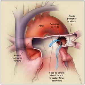 Operación de derivación de Potts. La arteria pulmonar izquierda se anastomosa a la aorta descendente, lo cual permite que la sangre desaturada pase de la arteria pulmonar izquierda a la parte inferior del cuerpo (flecha). La arteria pulmonar derecha pasa por delante de la aorta ascendente, ya que se ha realizado una intervención de cambio arterial. Reproducido con permiso de Blanc et al.55.