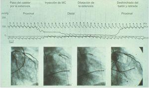 Primer caso de intervención coronaria percutánea. En 1979, se registró la presión coronaria a través de la estenosis antes y después de la angioplastia con balón en el primer caso de intervención coronaria. MC: medio de contraste; Pa: presión aórtica; PCo: presión coronaria. Reproducido con permiso de Grüntzig et al.10.