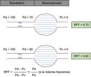 Esquema del concepto de RFF. Durante la hiperemia máxima, cabe presumir una relación directa entre la presión y el flujo coronarios, ya que se puede soslayar el efecto de la microcirculación. Pese a que en la estimación visual se da el mismo grado de estenosis, los casos ilustrados muestran unos valores de RFF totalmente diferentes. Pa: presión aórtica; Pd: presión distal; Pv: presión venosa central; RFF: reserva fraccional de flujo.