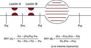 Esquema del concepto de RFF en las lesiones en tándem. Existen ecuaciones para la predicción de la RFF de cada lesión por separado, pero son complicadas. Pa: presión aórtica; Pd: presión distal; Pm: presión coronaria entre 2 lesiones; Pw: presión coronaria enclavada; RFF: reserva fraccional de flujo.