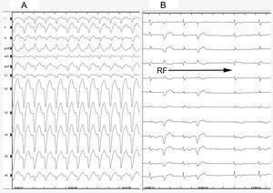 A: electrocardiograma que muestra una taquicardia de QRS ancho con morfología de bloqueo de rama izquierda del haz de His. B: aberrancia intermitente durante la ablación y reversión a ritmo sinusal. RF: radiofrecuencia.