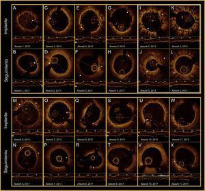 Todos los paneles muestran los hallazgos de la OCT (implante-seguimiento). Las flechas blancas indican las marcas radioopacas del Absorb-BVS. Las cruces blancas indican las placas y los nódulos de calcio. Los asteriscos rojos marcan las ramas laterales. I-L: reestenosis grave del Absorb-BVS (6 meses), que se trató con stent farmacoactivo (2013) sin perjuicio de la reabsorción (2017). OCT: tomografía de coherencia óptica. Esta figura se muestra a todo color solo en la versión electrónica del artículo.