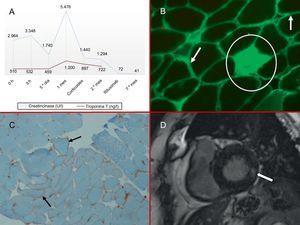 A: marcadores de daño miocárdico; elevación de ambas enzimas con predominio de la creatincinasa. B: biopsia muscular, inmunofluorescencia para IgG (×10); las flechas indican la acumulación de fibras musculares en la membrana plasmática y el círculo indica la fibra necrótica intramisial. C: biopsia muscular, tinción inmunohistoquímica para MCH1 (×10); sobreexpresión de anti-MCH1 de fibras musculares (flechas) en la membrana plasmática. D: resonancia magnética cardiaca, secuencia de realce tardío con gadolinio; la flecha indica la captación intramiocárdica inferolateral basal. MCH1: antígeno de histocompatibilidad de clase I.