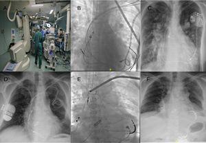 A: quirófano híbrido de nuestro centro. B y C: paciente con ventrículo único y marcapasos bicameral. D y E: paciente con marcapasos bicameral por el lado izquierdo y desfibrilador automático implantable bicameral implantado por el lado derecho.