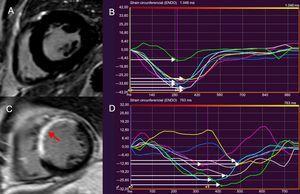 Resonancia magnética cardiaca de rastreo de características para evaluar la DMVI. La DMVI se define como la desviación estándar del tiempo hasta alcanzar el strain circunferencial máximo, expresada como porcentaje de la longitud del ciclo cardiaco. La imagen A muestra el corte medioventricular de eje corto del VI de un sujeto sano, en el que se observa ausencia de RTG. Se constata que la DMVI del paciente es normal (A) por medio de la deformación sincronizada de los distintos segmentos del VI (señalados con distintos colores) y del tiempo hasta alcanzar el nivel máximo de strain circunferencial, indicado con flechas blancas (B). La imagen C muestra el adelgazamiento y la extensión del RTG en el septo interventricular y la pared anterior del VI tras sufrir un infarto de miocardio (flecha). Aumento de la DMVI (11,8%) en el paciente (C), que refleja la disincronía en los segmentos del VI (D). La DMVI>9,79% se relaciona con arritmias ventriculares y riesgo de muerte súbita cardiaca tras sufrir un infarto. DMVI:dispersión mecánica del ventrículo izquierdo; RTG:realce tardío de gadolinio; VI:ventrículo izquierdo. Esta figura se muestra a todo color solo en la versión electrónica del artículo.