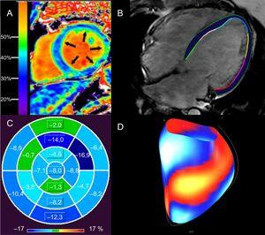 Evaluación de la fibrosis miocárdica difusa y consecuencias funcionales con resonancia magnética cardiaca de pacientes con MCD. A:elevación de la FVE del 37% en un paciente con MCD no isquémica; una FVE alta se relaciona con arritmias ventriculares en la MCD no isquémica12. B:contornos epicárdicos y endocárdicos del VI en una imagen de precesión libre en estado estacionario, horizontal y de eje largo, de un paciente con MCD idiopática (FEVI<10%) a partir de la cual se calcula el strain longitudinal global con rastreo de características. C:mapa polar del strain longitudinal segmentario del VI en el paciente (B), que muestra alteración del strain longitudinal global (–4,4%); los segmentos del ventrículo izquierdo se señalan con distintas tonalidades de azul (los tonos más oscuros indican mejor strain segmentario) y verde (peor strain segmentario); el strain longitudinal global superior al –12,5% se relaciona con muerte súbita cardiaca en la MCD no isquémica, independientemente de la FEVI22. D:visualización de la superficie del strain segmentario del VI de (B), con segmentos azul/blanco que representan el mejor strain respecto a los segmentos rojo/amarillo (peor strain). FEVI: fracción de eyección del ventrículo izquierdo; FVE: fracción del volumen extracelular; MCD: miocardiopatía dilatada; VI: ventrículo izquierdo. La imagen A se ha reproducido con autorización de Schelbert et al.53. Esta figura se muestra a todo color solo en la versión electrónica del artículo.