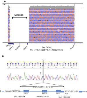Resultados de la secuenciación para el gen CASQ2. A: Visor integrador de genómica (Integrative Genomics Viewer, IGV) para el producto de la RCP de gran alcance del caso índice. B: electroferograma y representación de la localización exacta de la deleción.