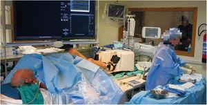 Dispositivo Ergospect Cardio Step en el laboratorio de cateterismo.