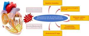Situaciones clínicas en las que los bloqueadores beta se han demostrado útiles para la prevención de la muerte súbita por arritmias ventriculares. FEVI: fracción de eyección del ventrículo izquierdo; IAM: infarto agudo de miocardio; TV: taquicardia ventricular.