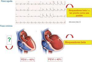 Situación actual de los bloqueadores beta en las distintas fases del síndrome coronario agudo. FEVI: fracción de eyección del ventrículo izquierdo; IAM: infarto agudo de miocardio; i.v.: intravenosos.