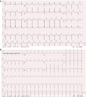 A: ECG del caso 1. B: ECG del caso 2; ambos muestran complejos QRS anchos para la edad, desviación del eje a la izquierda, bloqueo de rama derecha y un patrón negativo en las derivaciones precordiales izquierdas. ECG: electrocardiograma.