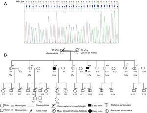 A: espectro inmunofluorométrico del pico en homocigosis en posición Val142Ile. B: árbol familiar.
