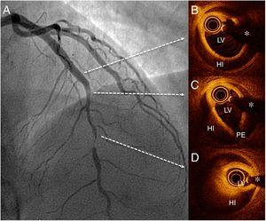 Hallazgos por angiografía (A) y tomografía de coherencia óptica (B-D) antes de la intervención coronaria percutánea. HI: hematoma intramural; LV: luz verdadera; PE: puerta de entrada; *: artefacto de la guía.