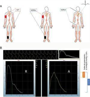 A: métodos frecuentes de medición de la rigidez arterial; izquierda: índice vascular carótida-tobillo (ICT); centro: velocidad de la onda de pulso brazo-tobillo (VOPbt); derecha: velocidad de la onda de pulso carótida-femoral (VOPcf); a la derecha se muestra el uso de un tonómetro para obtener la forma de onda vascular; sin embargo, también puede usarse un manguito tanto en la ubicación carotídea como en la femoral. B: cálculo del índice de potenciación central; en el recuadro se muestran 2 ondas elaboradas, correspondientes a radial (R) y aórtico (A); el operador registra 10 s de la onda radial mostrada en la parte superior del recuadro B; la onda se calibra introduciendo la presión arterial humeral en el momento de la medición; el programa informático utiliza un algoritmo para estimar la onda de presión central mediante los datos de la onda radial y muestra la onda de presión aórtica central a la derecha; en este ejemplo, la presión arterial humeral fue de 130/96mmHg; la presión aórtica central es de 122/97mmHg; la presión del pulso en la onda aórtica central, que se muestra en el recuadro azul, es de 25mmHg (calculada mediante el valor sistólico menos el diastólico); el ascenso de la onda aórtica central cambia claramente de pendiente a 116mmHg, y se indica con un punto verde en el borde derecho de la onda aórtica; el valor sistólico (122mmHg) menos el valor en el punto de la deflexión (116mmHg) produce una diferencia de 6mmHg que se muestra en el recuadro naranja, y ello corresponde a la presión de potenciación experimentada por el ventrículo izquierdo cuando se completa la sístole; esta presión de potenciación se debe a la onda de presión en sentido retrógrado, que llega al ventrículo izquierdo en la parte final de la sístole y contribuye a producir la onda de presión central final; el índice de potenciación central es el cociente de esta presión potenciada respecto a la presión del pulso aórtica.