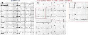 Observación clínica: mujer de 54 años con miocardiopatía no isquémica, con reducción leve de la fracción de eyección e indicación de marcapasos debido a bloqueo auriculoventricular paroxístico de primer y segundo grado. A:ECG inicial y morfología de BRIHH. B:ECG a los 10meses de seguimiento; el diagrama ampliado muestra el QRS estrecho (84ms). BRIHH: bloqueo de rama izquierda del haz de His; HBP-S: estimulación selectiva del haz de His.