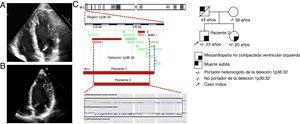 Paciente 2. A: ecocardiografía que muestra la ausencia de compactación en los segmentos apical y lateral del VI. B:ausencia de compactación en el VI de la hermana afectada. C:el análisis de CNV mediante un estudio de microchip de SNP confirmó la deleción de 11 genes, incluido PRDM16 (Affymetrix CytoScan). D:el estudio de segregación familiar mediante NGS confirmó la presencia de esta deleción en la hermana. CNV: variaciones en el número de copias; VI: ventrículo izquierdo. Esta figura se muestra a todo color solo en la versión electrónica del artículo.