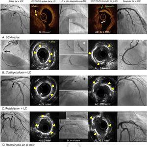 Caracterización de lesiones calcificadas por tomografía de coherencia óptica y ecografía intravascular, y efectos de la litoplastia coronaria y uso concomitante de otros dispositivos de modificación de placa. Las flechas negras indican las lesiones calcificadas graves; el asterisco blanco indica el cutting-balloon; el asterisco negro indica el método de rotablación. AL: área luminal; BL: balón de litoplastia; ICP: intervención coronaria percutánea; IVUS: ecografía intravascular; LC: litoplastia coronaria; MP: modificación de placa; OCT: tomografía de coherencia óptica. Esta figura se muestra a todo color solo en la versión electrónica del artículo.