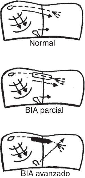 Activación auricular en sujetos sanos (normal), con bloqueo interauricular (BIA) parcial y avanzado.
