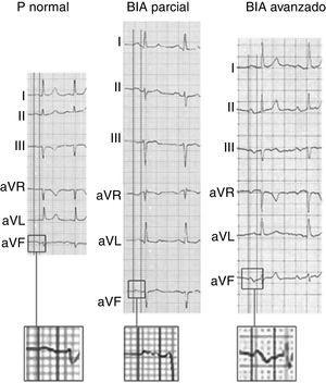 Ejemplos de onda P normal, bloqueo interauricular (BIA) parcial y avanzado. Adaptado con permiso de Martínez-Sellés et al.18.